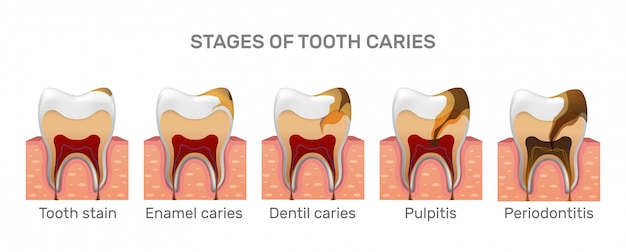 Structure des caries dentaires et étapes de placement complètes dans un style réaliste.