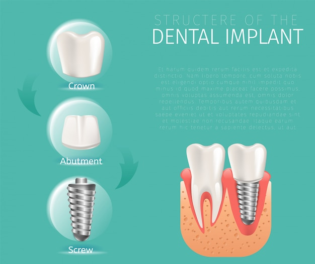 Structure d'image réaliste de l'implant dentaire