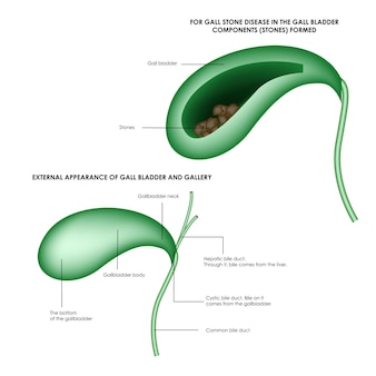 La structure de la vésicule biliaire et des pierres dans la vésicule biliaire illustration médicale réaliste