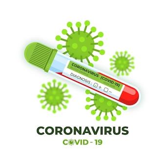 Test sanguin de coronavirus