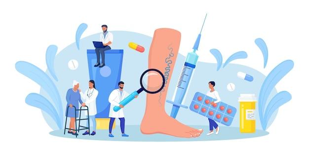 Thrombose veineuse et traitement des varices. petit docteur avec loupe et médicaments autour d'un pied énorme avec des veines malades. une femme âgée est venue chez des spécialistes pour l'examen des vaisseaux sanguins et des veines
