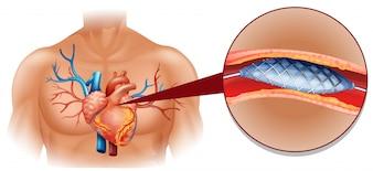 Traitement du cancer du coeur