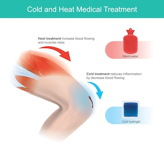 Traitement médical par le froid et la chaleur.
