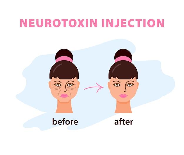 Traitement des rides du visage avant et après chirurgie esthétique concept de traitement du visage pour femme