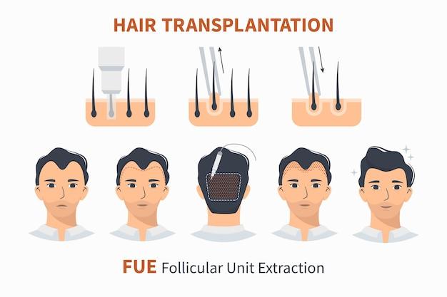 Transplantation capillaire extraction d'unité folliculaire fue
