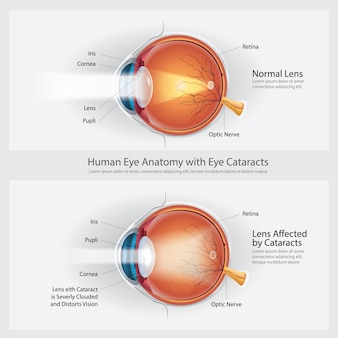 Trouble de la vision de la cataracte et anatomie d'une vision normale