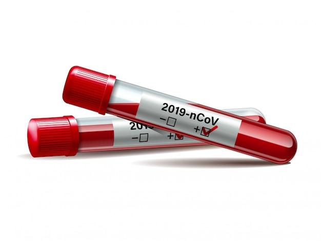 Tube à essai avec échantillon de sang pour covid-19, test de coronavirus.