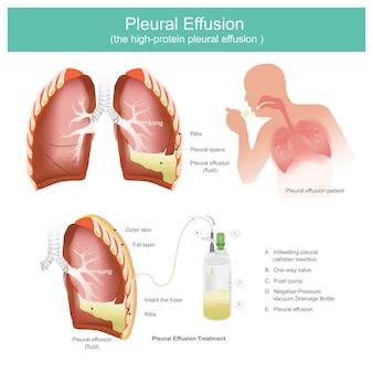 Tuberculose infection tuberculeuse dans les poumons. les patients souffrant d'infections respiratoires. causé par des bactéries de la tuberculose.