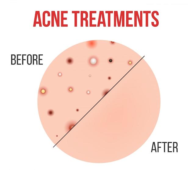 Types d'acné, boutons, pores de la peau, points noirs.