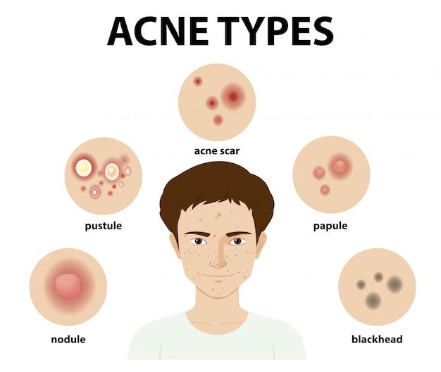 Types d'acné sur la peau ou boutons