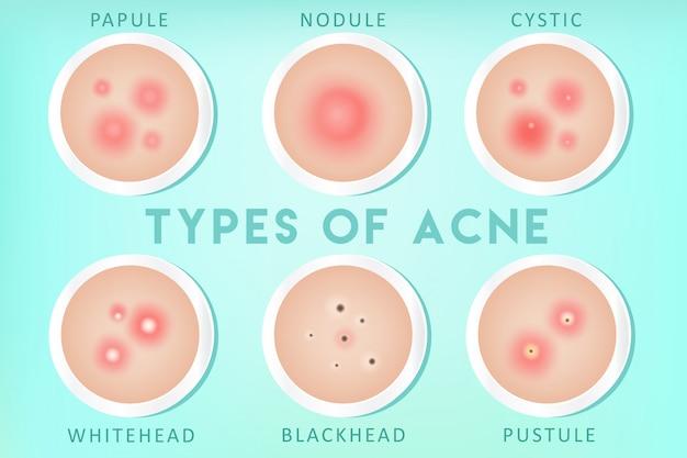 Types d'acné