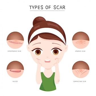 Types de cicatrice