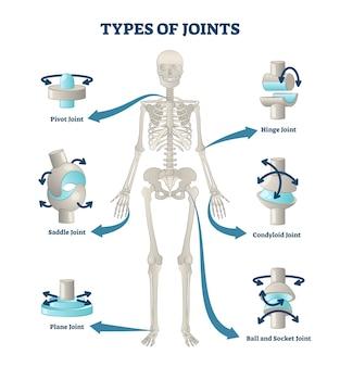 Types de joints illustration