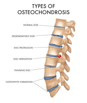 Types d'ostéochondrose avec colonne vertébrale