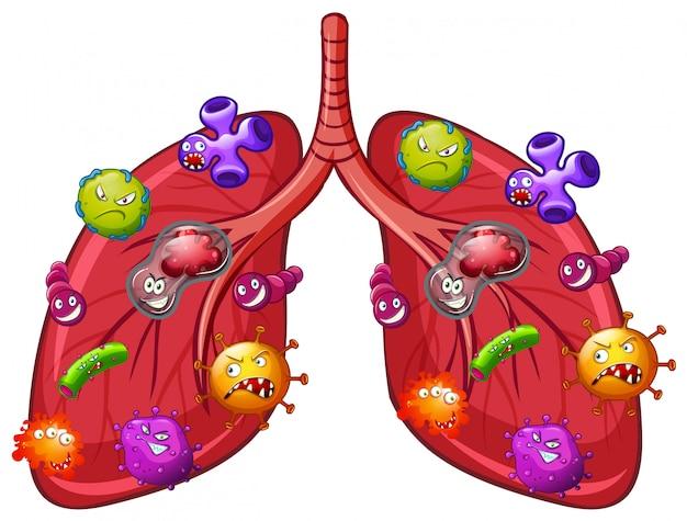 Un vecteur de la bactérie pulmonaire