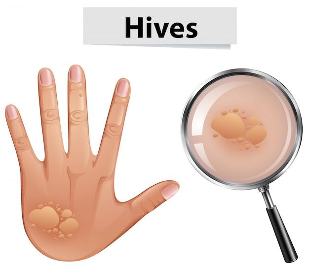 Un vecteur de ruches sur la peau humaine