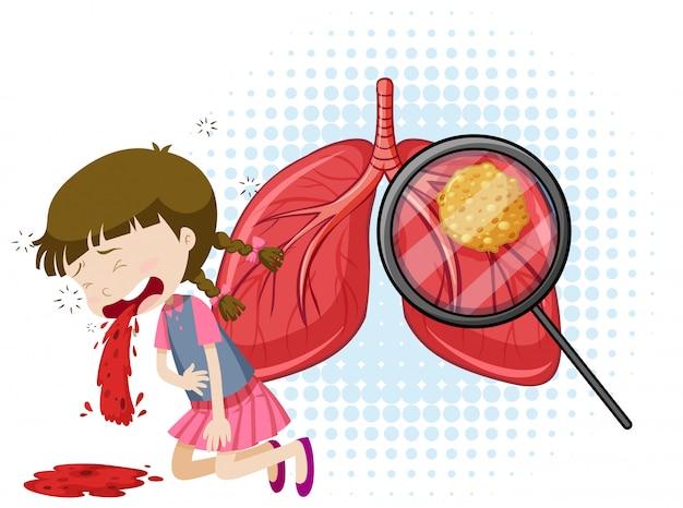 Un vecteur de la tuberculose