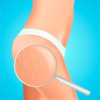 Vergetures sur les hanches des femmes. vu sous la loupe.