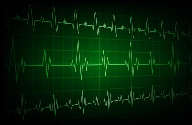 Vert cardiofréquencemètre avec signal.
