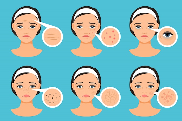 Visage féminin avec illustration vectorielle de problèmes de peau. femme avec des problèmes
