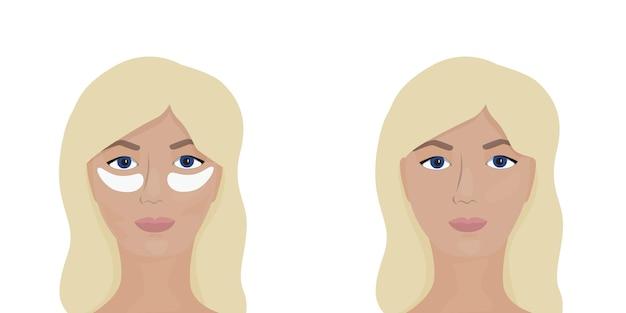 Visages de femme avec des patchs sur le visage et sans patchs