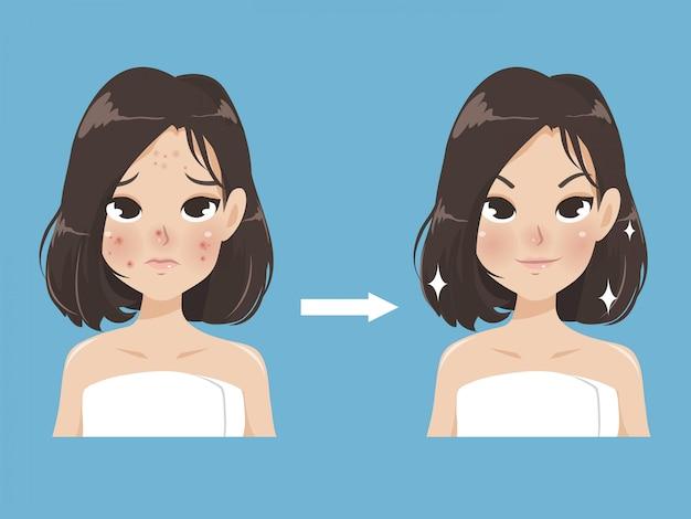 El acné y la belleza en una mujer joven.