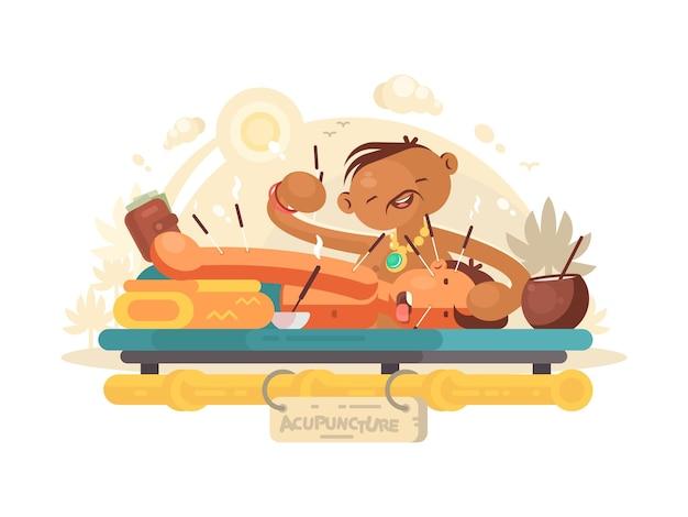 Acupuntura médica. el especialista en medicina alternativa hace el procedimiento. ilustración vectorial
