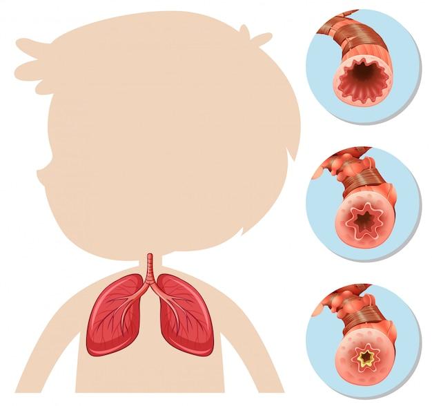 Una anatomía de boy silhouette lung