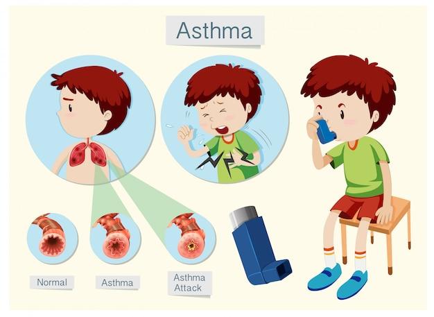Una anatomía humana y el asma de la salud