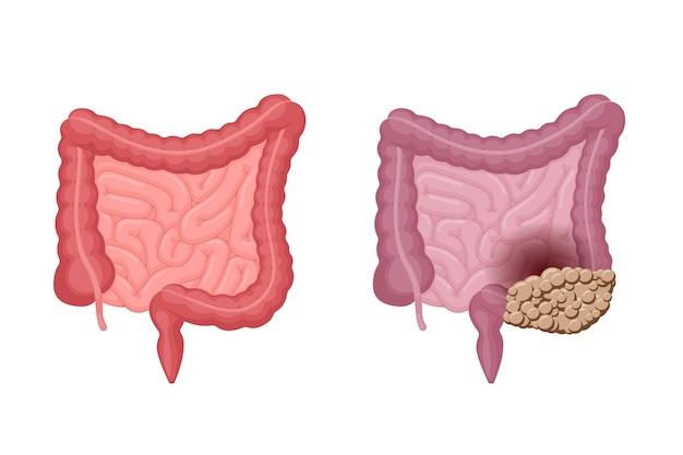 Anatomía de los intestinos humanos fuerte, saludable y no saludable con comparación de cáncer de colon, cavidad abdominal