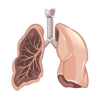 Anatomía de los pulmones humanos, diagrama de cáncer