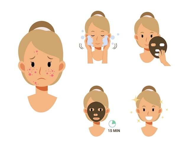 Antes y después de la hoja de mascarilla, elimine el acné.