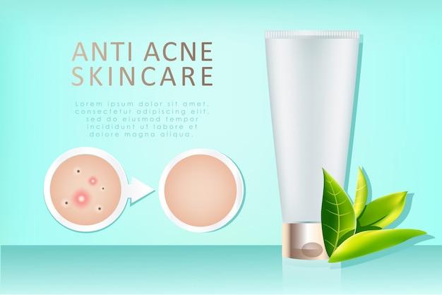 Anuncio realista de crema anti-acné