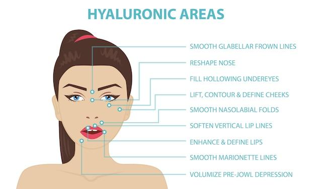 Áreas de inyección facial de ácido hialurónico.