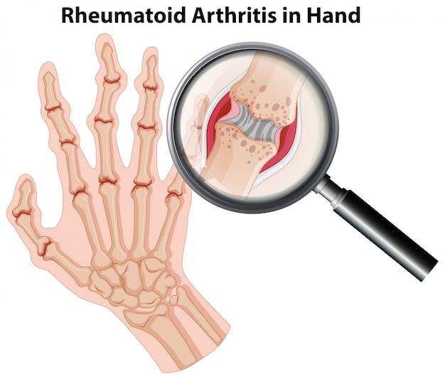 Artritis reumatoidea de la anatomía humana en la mano