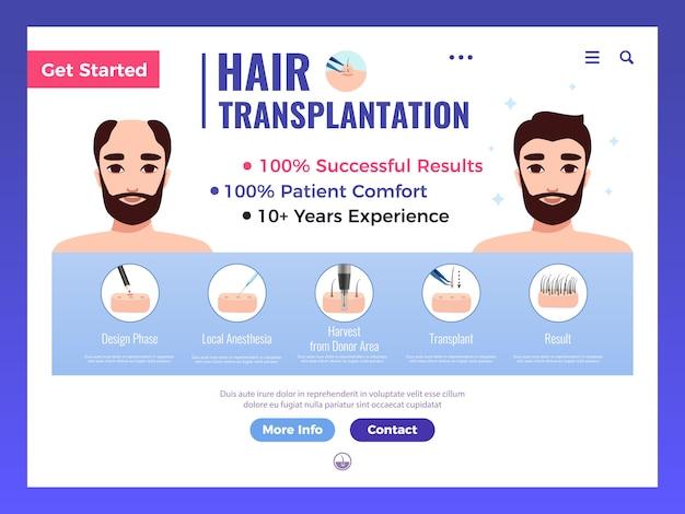 Banner web de trasplante de cabello con publicidad infográfica y elementos de interfaz en blanco