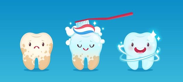 Blanqueamiento dental. diente antes y después de la limpieza con pasta de dientes y cepillo de dientes, procedimiento de eliminación de placa dental diente blanco feliz y amarillo cambiante, conjunto de vector de clínica de odontología para niños de cuidado bucal para niños