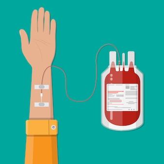 Bolsa con sangre y mano de donante. concepto de donación