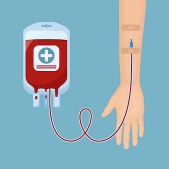 Bolsa de sangre con mano