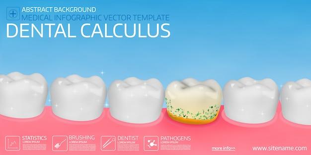 Cálculo dental.