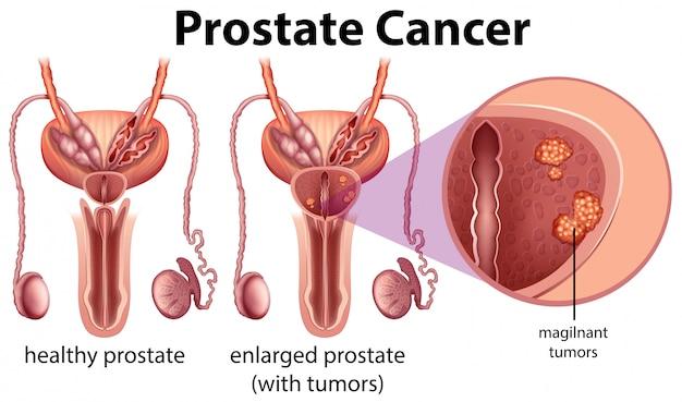 Cáncer de próstata en el fondo blanco