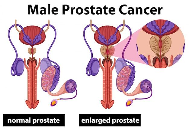 Cáncer de próstata masculino humano