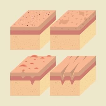 Capas de tipos de piel