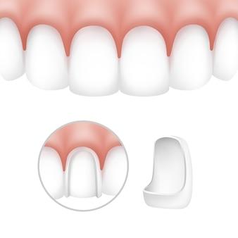 Carillas dentales vectoriales en dientes humanos aislados sobre fondo blanco