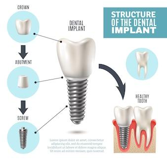 Cartel de infografía médica de la estructura del implante dental