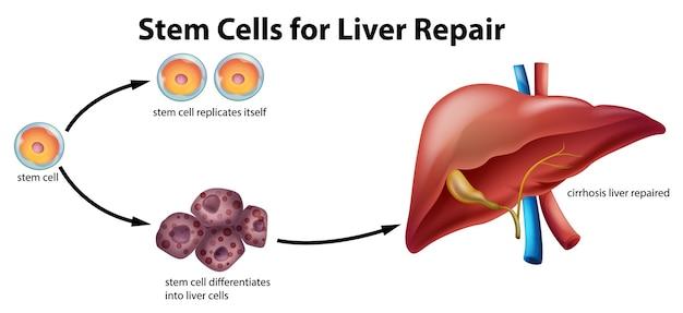 Células madre para la reparación del hígado.