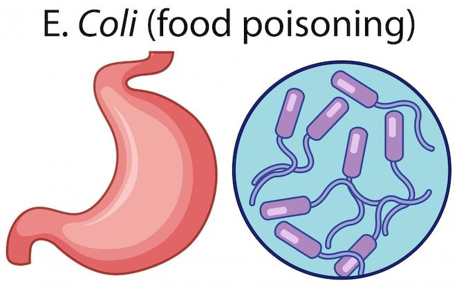 Células magnificadas de intoxicación alimentaria