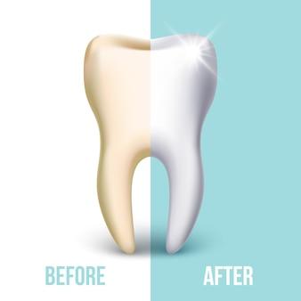 Chapa dental, concepto de blanqueamiento dental. estomatología y sanidad, ilustración diente blanco.