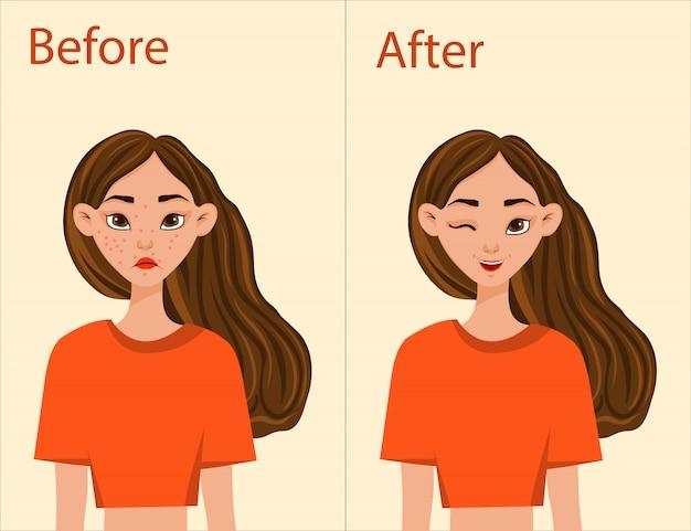 Chica antes y después del tratamiento del acné. estilo de dibujos animados. ilustración.