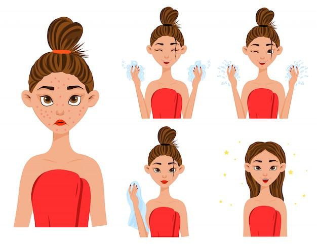 Chica antes y después del tratamiento del acné.
